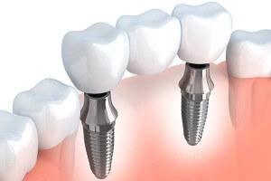 Implant Supported Bridge Graphic